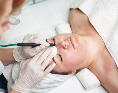 Tratament anti-aging cu Laser VBEAM